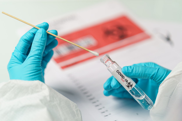 hand-holding-covid-19-swab-collection-kit-specimen-sample-testing-process_46370-1598